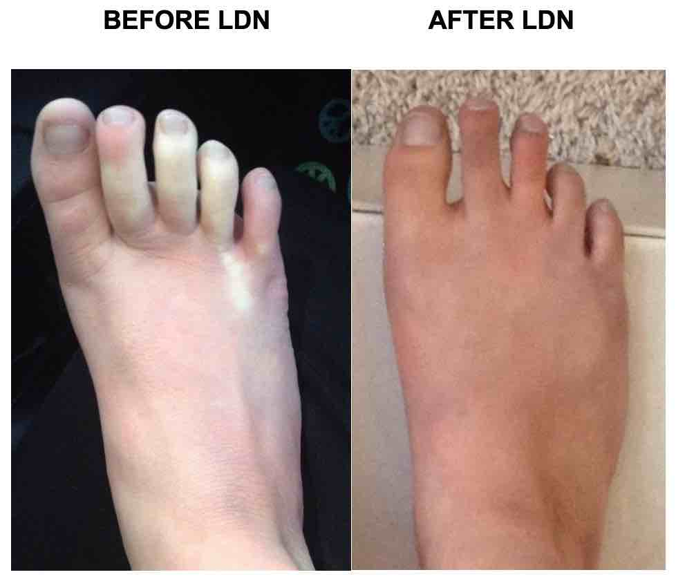 Tia Foot Before&After